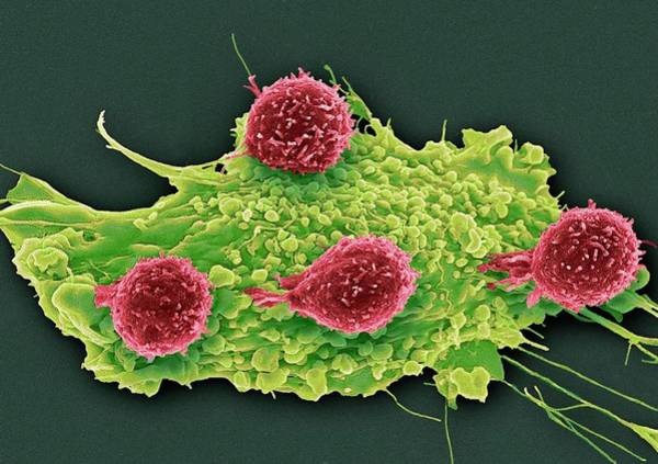 Immune Cell Wall Art - Photograph - T Lymphocytes And Cancer Cell by Steve Gschmeissner