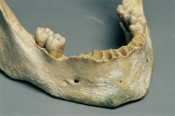 Wall Art - Photograph - Teeth During Forensic Research by Philippe Psaila/science Photo Library
