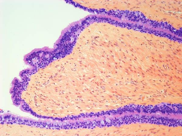 Neoplasm Photograph - Testicular Cancer by Steve Gschmeissner