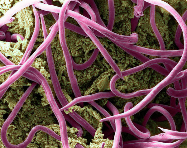 Wall Art - Photograph - Threadworms In Intestine by E. Gray/science Photo Library