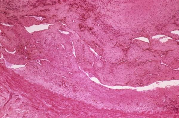 Microscope Wall Art - Photograph - Thrombophlebitis by Pr. R. Abelanet - Cnri
