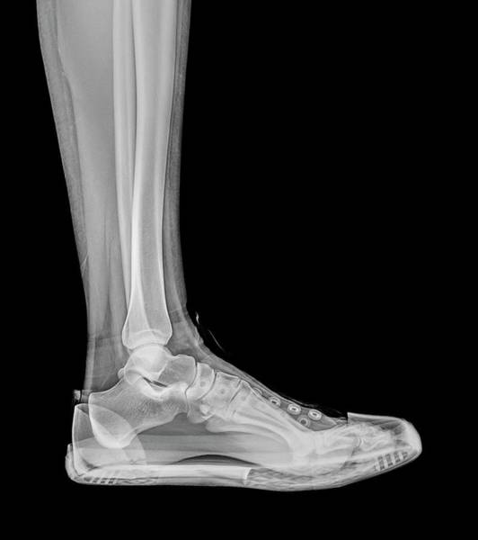 Body Parts Photograph - Trainers X-ray by Photostock-israel