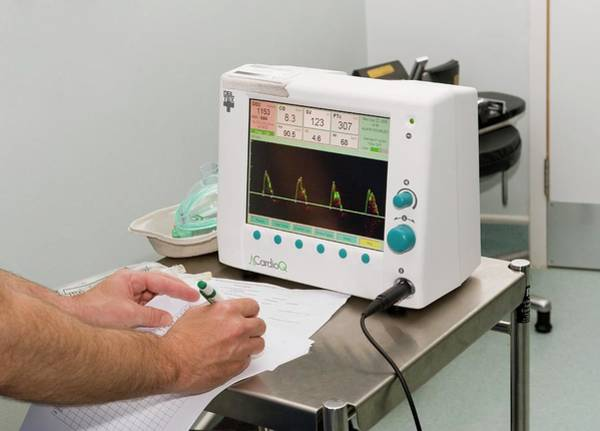 Ted Photograph - Transoesophageal Doppler Ultrasound by Dr P. Marazzi/science Photo Library