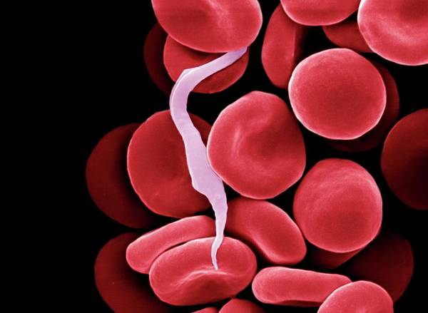 Diagnosis Wall Art - Photograph - Trypanosome Amongst Blood Cells by Clouds Hill Imaging Ltd