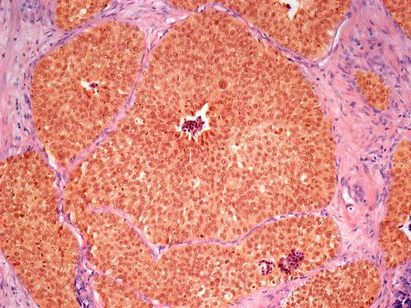 Carcinoma Wall Art - Photograph - Urinary Tract Cancer by Steve Gschmeissner