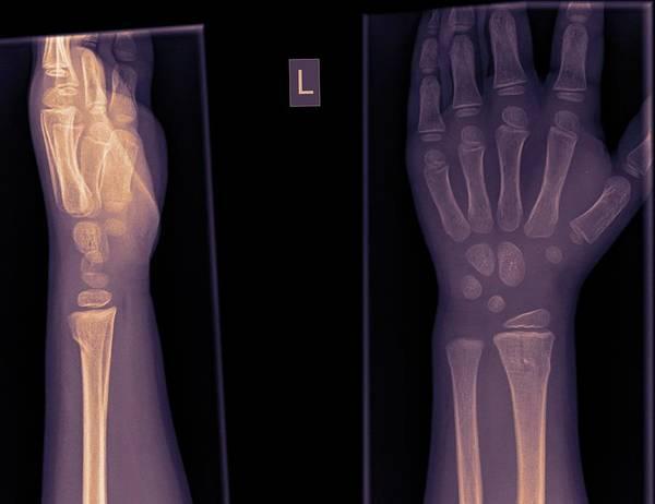 Hand Anatomy Wall Art - Photograph - Wrist And Hand X-ray by Photostock-israel