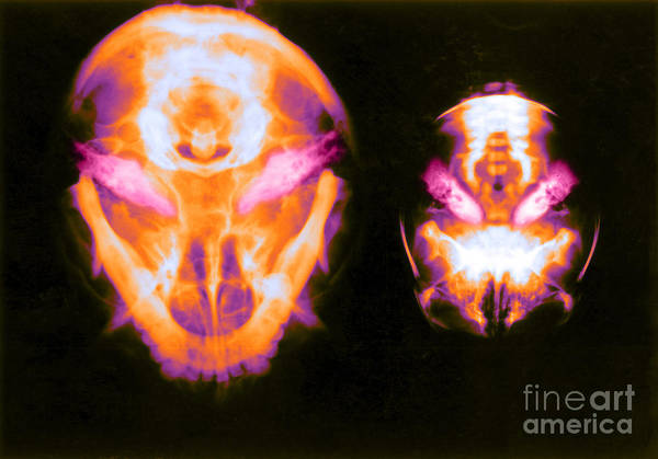 Photograph - X-ray Of Inner Ear, Adult And Newborn by Biophoto Associates