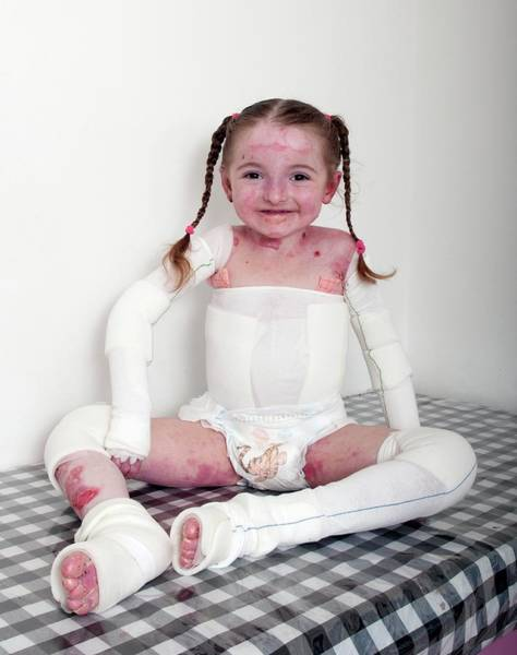 Bandage Photograph - Young Girl With Epidermylosis Bullosa by Science Photo Library