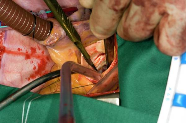 Wall Art - Photograph - Aortic Valve Replacement Surgery by Dr P. Marazzi/science Photo Library