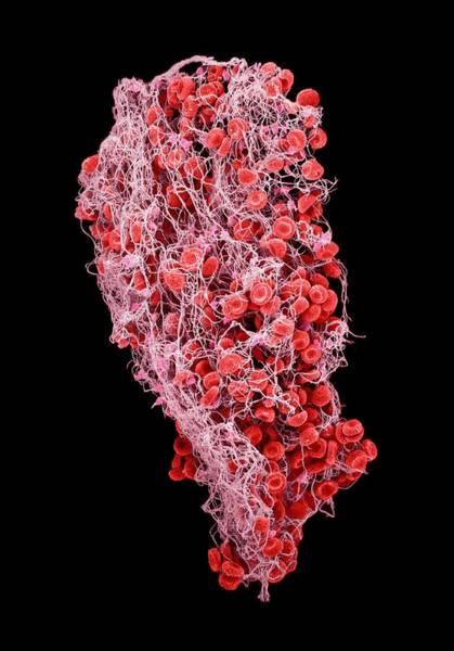 Fibrin Wall Art - Photograph - Blood Clot by Susumu Nishinaga