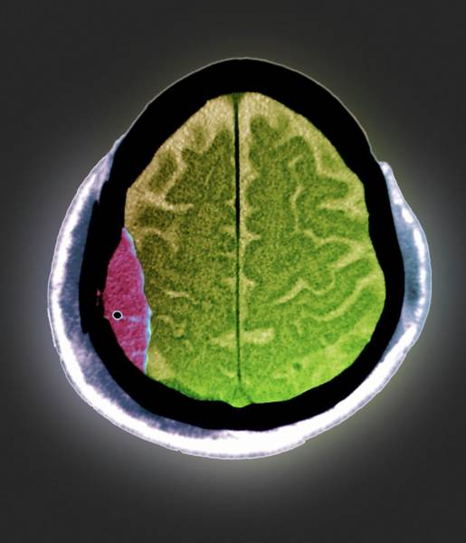 Temporal Bone Wall Art - Photograph - Brain Haemorrhage by Zephyr