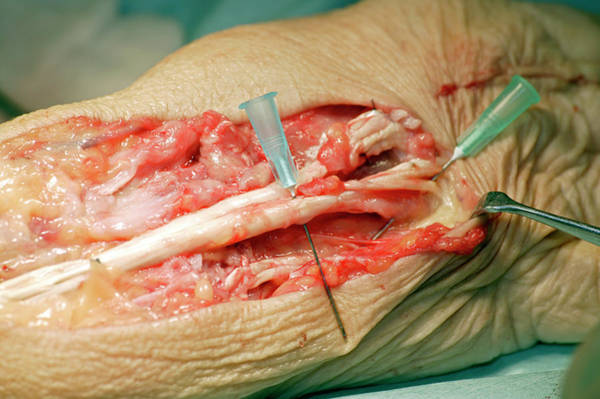 Wall Art - Photograph - Carpal Tunnel Syndrome Surgery by Antonia Reeve/science Photo Library