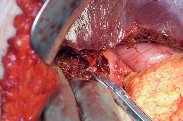 Wall Art - Photograph - Gall Bladder Cancer Surgery by Dr P. Marazzi/science Photo Library