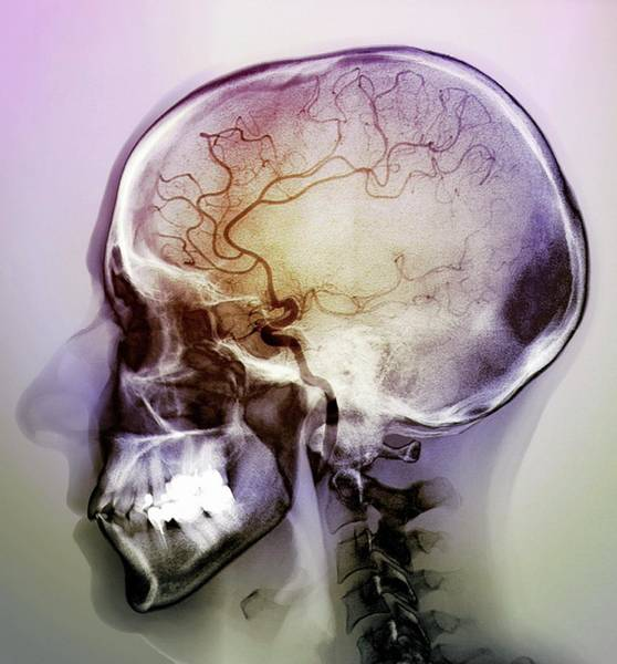 Cerebral Angiogram Photograph - Stroke by Zephyr/science Photo Library