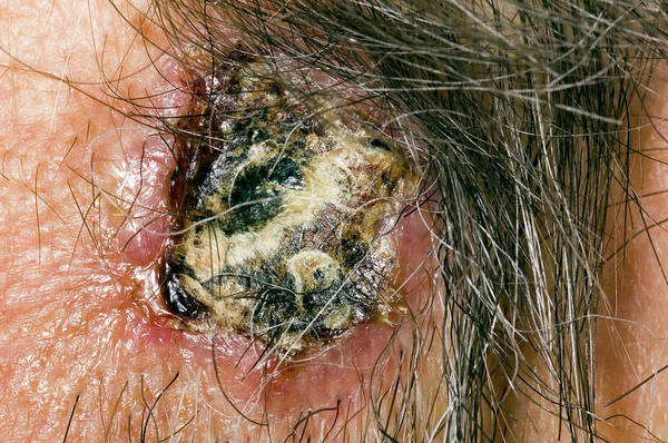 Rodents Photograph - Basal Cell Carcinoma by Dr P. Marazzi/science Photo Library