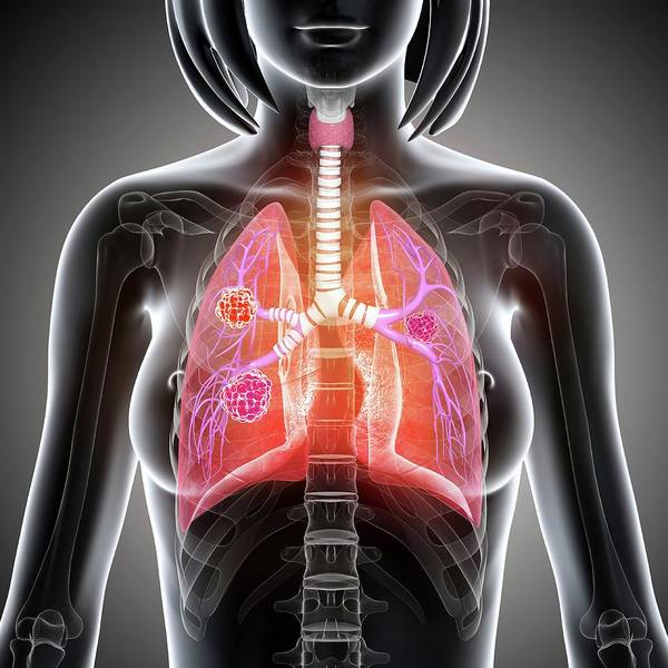 Wall Art - Photograph - Female Lung Cancer by Pixologicstudio/science Photo Library