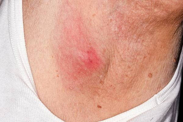 Neckline Photograph - Infected Sebaceous Cyst by Dr P. Marazzi/science Photo Library