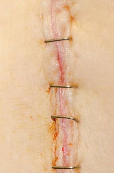 Staples Photograph - Knee Replacement Surgery by Dr P. Marazzi/science Photo Library