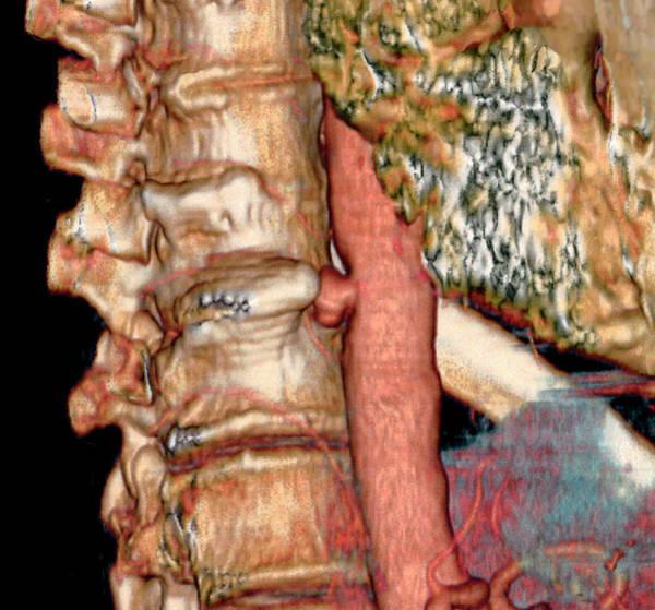 Lumbar Vertebra Photograph - Aortic Aneurysm by Zephyr/science Photo Library