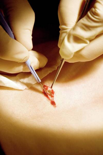 Wall Art - Photograph - Biopsy Procedure by Life In View/science Photo Library
