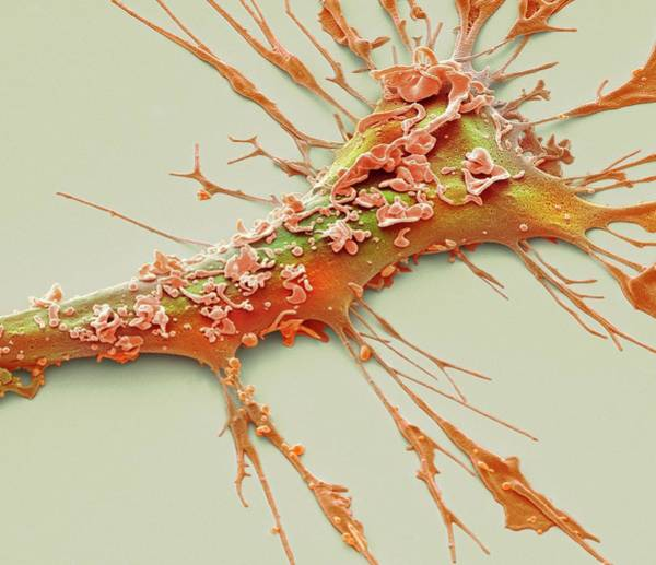 Kupffer Cell Photograph - Dendritic Cell by Steve Gschmeissner