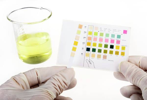 Specific Gravity Wall Art - Photograph - Home Urine Test by Cordelia Molloy