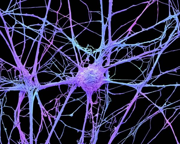 Photograph - Neurone by Steve Gschmeissner