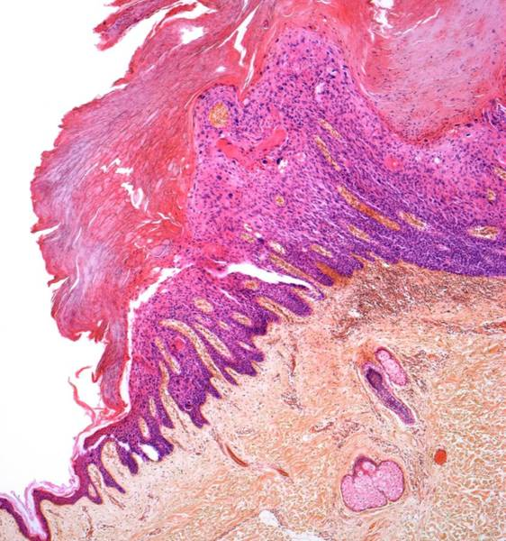 Carcinoma Wall Art - Photograph - Skin Cancer by Steve Gschmeissner