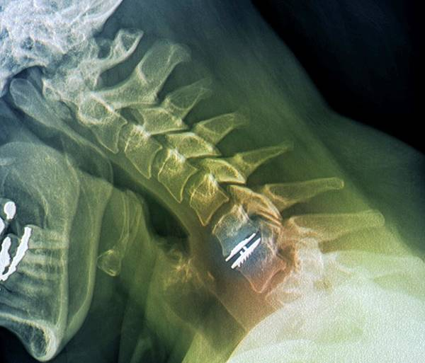 C7 Wall Art - Photograph - Spinal Disc Implant by Zephyr