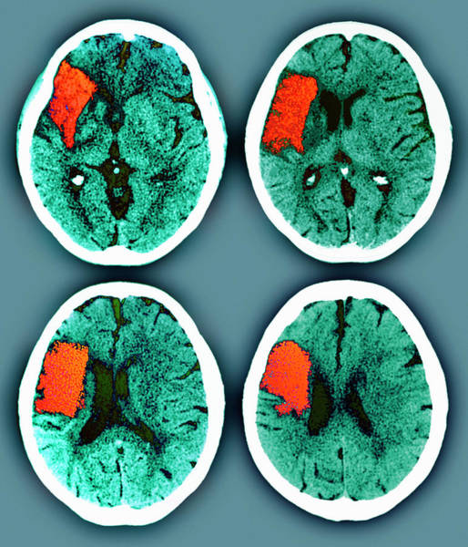 Cerebral Photograph - Stroke by Zephyr/science Photo Library