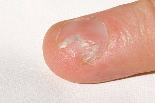 Fingernail Wall Art - Photograph - Fungal Nail Infection by Dr P. Marazzi/science Photo Library