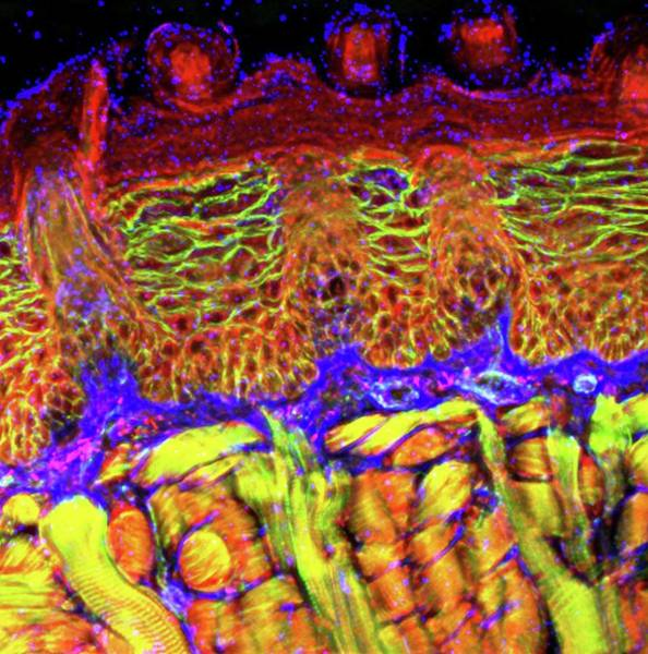 Skeletal Muscle Photograph - Tongue Tissue by R. Bick, B. Poindexter, Ut Medical School