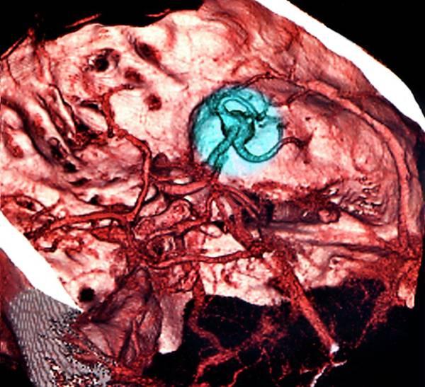 Cerebral Angiogram Photograph - Brain Haemorrhage by Zephyr