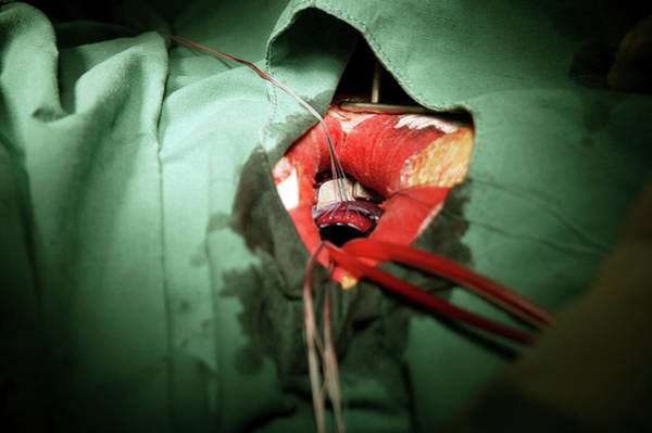 Wall Art - Photograph - Heart Valve Surgery by Antonia Reeve/science Photo Library