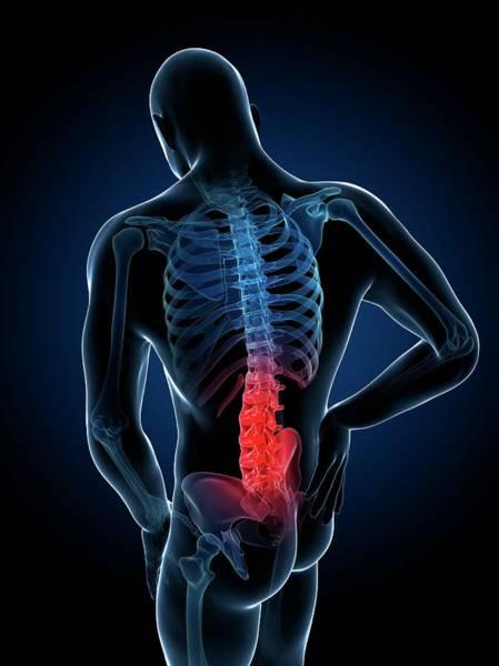 Lumbar Vertebra Photograph - Human Back Pain by Sebastian Kaulitzki