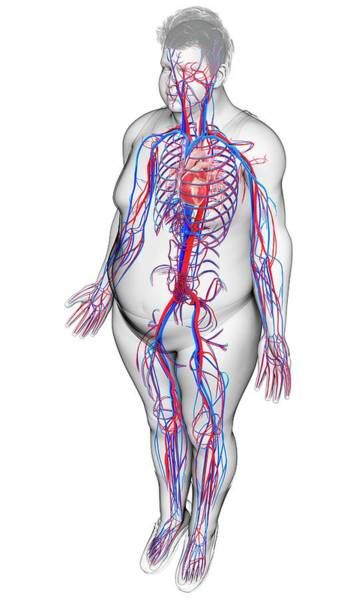 Wall Art - Photograph - Male Circulatory System by Pixologicstudio/science Photo Library