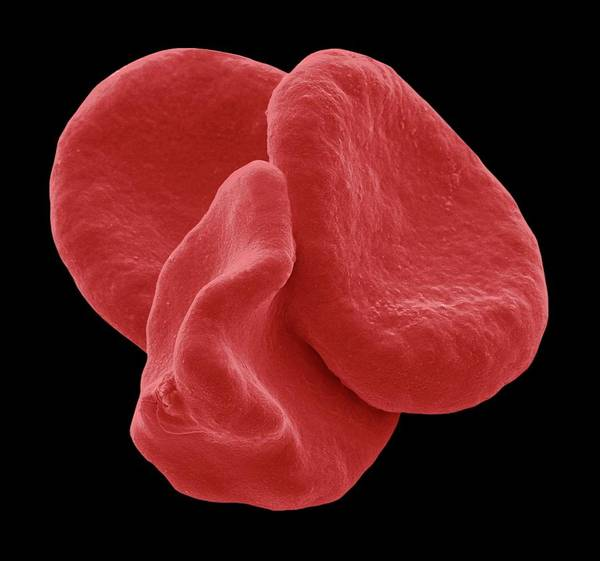 Wall Art - Photograph - Red Blood Cells by Steve Gschmeissner