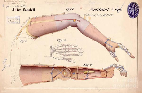Civil War Drawing - 1865 Artificial Limbs Patent Drawing by Jon Neidert