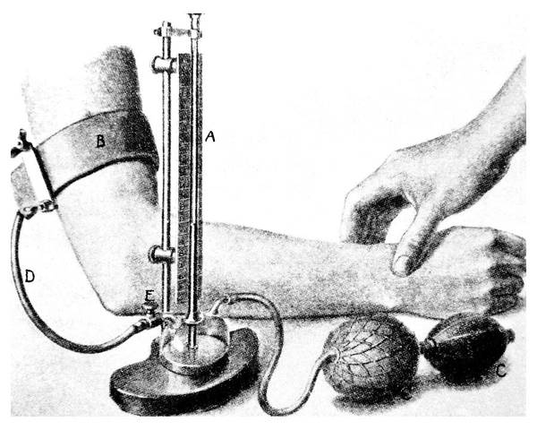 Wall Art - Photograph - 19th C Sphygmomanometer Measuring Blood Pressure. by Science Photo Library