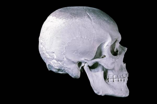 Maison Photograph - 19th Century Model Of A Human Skull by Patrick Landmann/science Photo Library