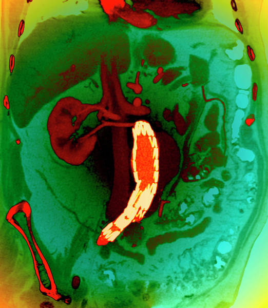 Abdominal Photograph - Abdominal Aortic Aneurysm by Zephyr/science Photo Library