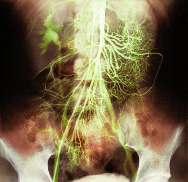 Vertebral Artery Photograph - Abdominal Arteries by Medimage/science Photo Library