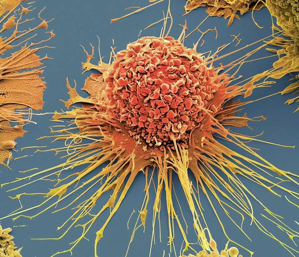 Immune System Wall Art - Photograph - Activated Macrophage by Steve Gschmeissner/science Photo Library