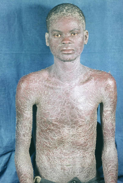 Patient Photograph - Aids Man With Psoriasis by Dr M.a. Ansary/science Photo Library