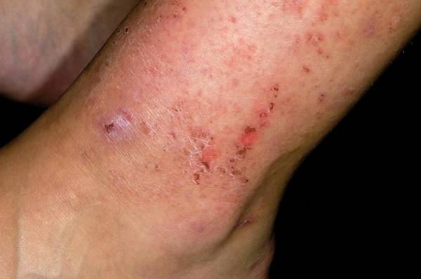 Wall Art - Photograph - Allergic Skin Reaction To Shin Pads by Dr P. Marazzi/science Photo Library