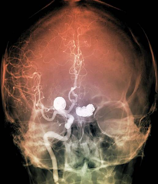 Patient Photograph - Aneurysm Treatment by Zephyr