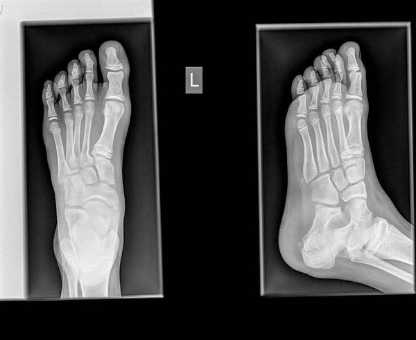 Radiograph Wall Art - Photograph - Ankle X-ray by Photostock-israel