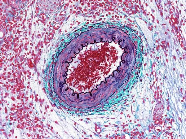 Artery Wall Art - Photograph - Artery by Microscape