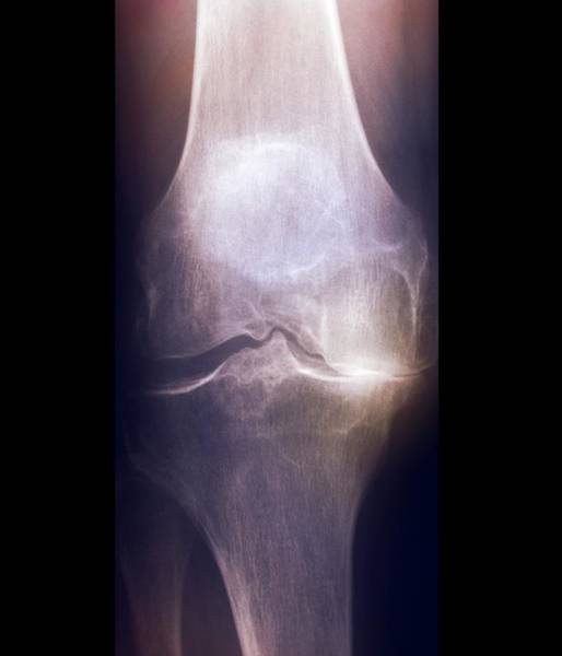 Xrays Wall Art - Photograph - Arthritis Of The Knee by Zephyr/science Photo Library