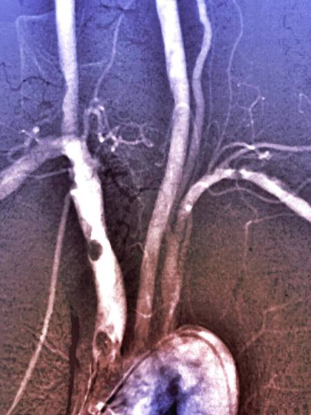 Atherosclerosis Wall Art - Photograph - Atheroma In Brachiocephalic Artery by Zephyr/science Photo Library